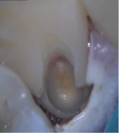 resorption3