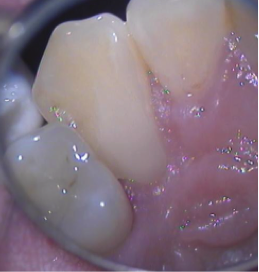 resorption8